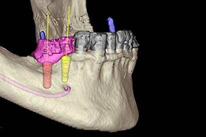 Zahnarzt-Tom-Friedrichs-Dresden-Implantate-а