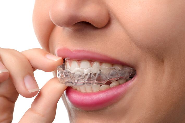 Zahnarzt-Tom-Friedrichs-Dresden-Zahnstellungskorrektur