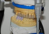 Zahnarzt-Tom-Friedrichs-Dresden-fal8