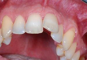 Zahnarzt-Tom-Friedrichs-Dresden-Ausgangssituation