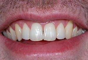 Zahnarzt-Tom-Friedrichs-Dresden-Behandlungsergebnis