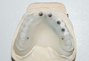 Zahnarzt-Tom-Friedrichs-Dresden-Fall-3-OP-Schablone