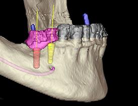 Zahnarzt-Tom-Friedrichs-Dresden-Implantate