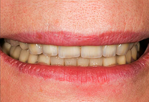 Zahnarzt-Tom-Friedrichs-Dresden-Prothetik-nach-1