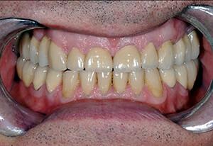 Zahnarzt-Tom-Friedrichs-Dresden-Prothetik-nach-2