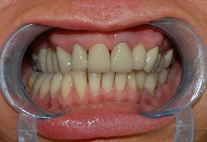 Zahnarzt-Tom-Friedrichs-Dresden-Prothetik-nach-3