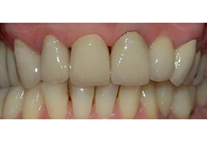 Zahnarzt-Tom-Friedrichs-Dresden-Prothetik-nach-3b