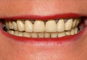 Zahnarzt-Tom-Friedrichs-Dresden-Prothetik-vor-1