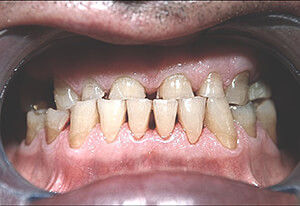 Zahnarzt-Tom-Friedrichs-Dresden-Prothetik-vor-2