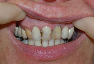 Zahnarzt-Tom-Friedrichs-Dresden-Prothetik-vor-3