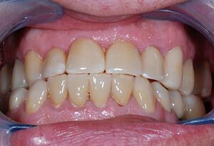 Zahnarzt-Tom-Friedrichs-Dresden-fall-4-fertig
