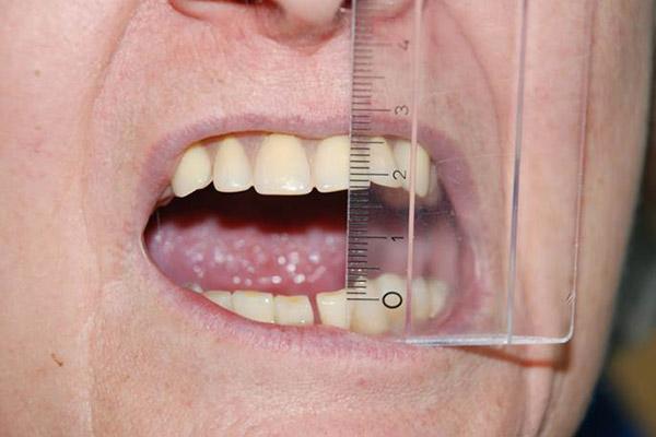 Zahnarzt-Tom-Friedrichs-Dresden-Friedrichs-Kraniomandibulaere-Dysfunktion