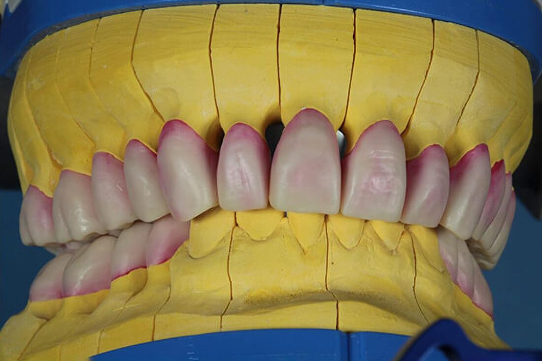 Zahnarzt-Tom-Friedrichs-Dresden-Umsetzung